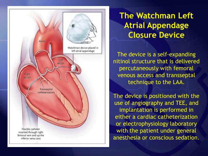 The Watchman Left Atrial Appendage Closure Device