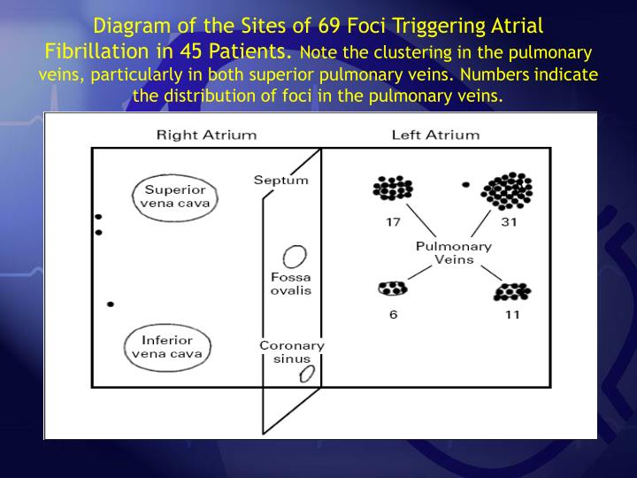 Diagram of the Sites of 69 Foci Triggering Atrial Fibrillation in 45 Patients.