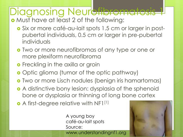 Diagnosing Neurofibromatosis 1