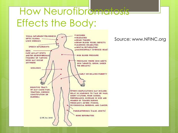 How Neurofibromatosis Effects the Body: