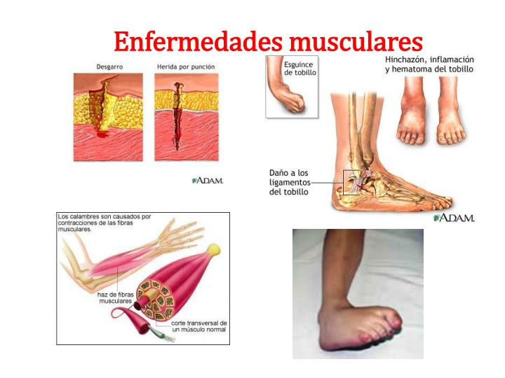 Enfermedades musculares