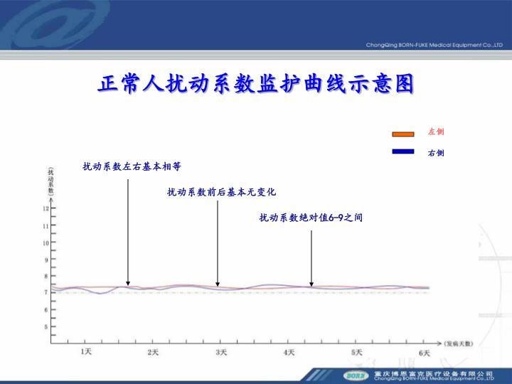 正常人扰动系数监护曲线示意图
