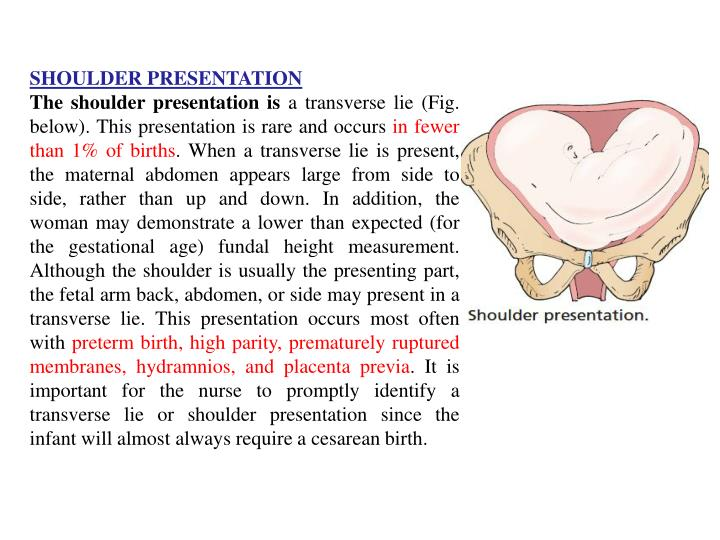 SHOULDER PRESENTATION