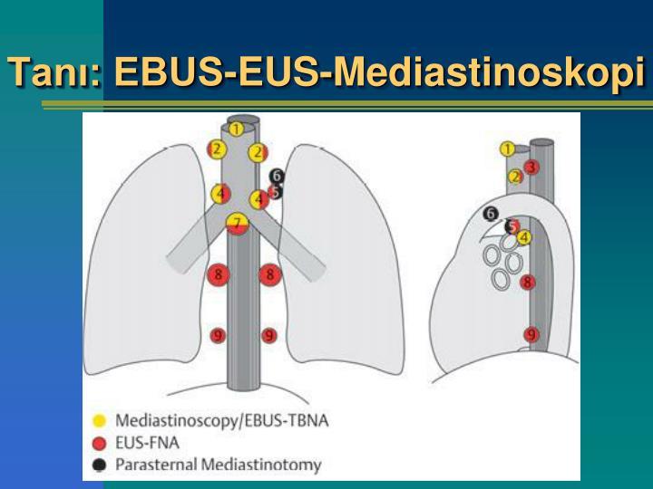Tanı: EBUS-EUS-