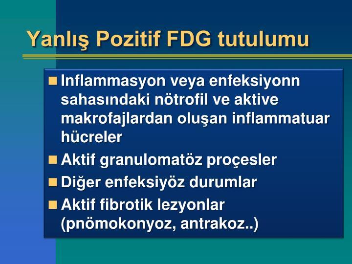 Yanlış Pozitif FDG tutulumu