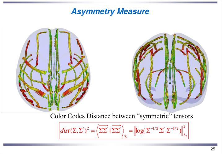 Asymmetry Measure