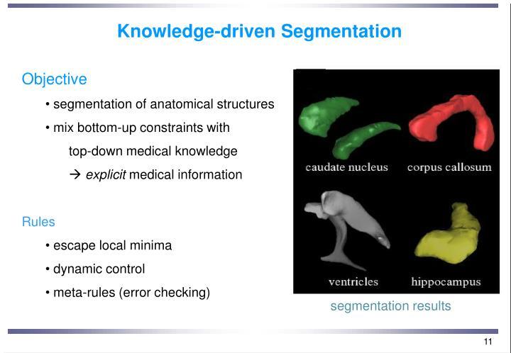 Knowledge-driven Segmentation