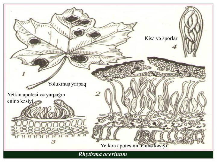 Kisə və sporlar