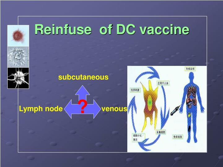 Reinfuse  of DC vaccine