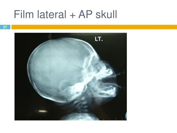 Film lateral + AP skull