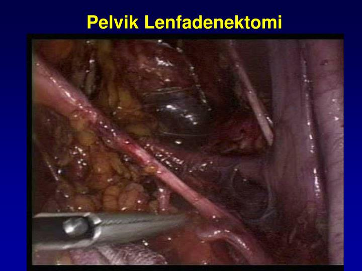 Pelvik Lenfadenektomi