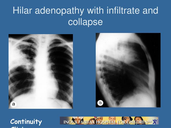 Hilar adenopathy with infiltrate and collapse