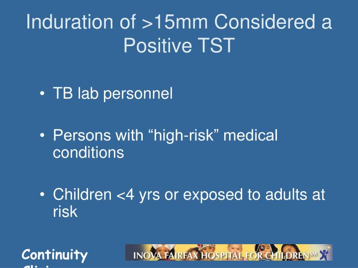 Induration of >15mm Considered a Positive TST