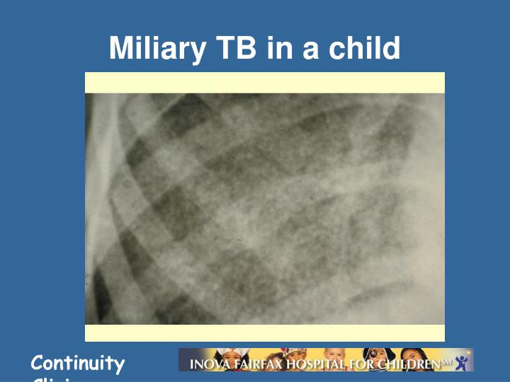 Miliary TB in a child