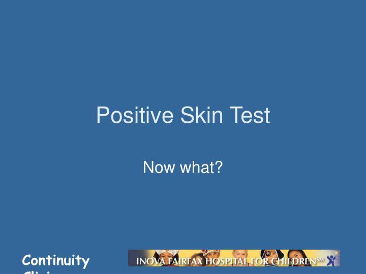 Positive Skin Test