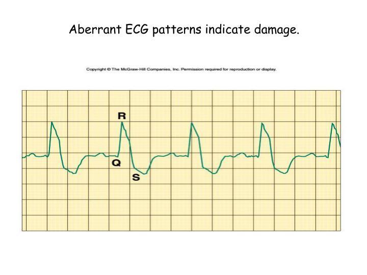 Aberrant ECG patterns indicate damage.