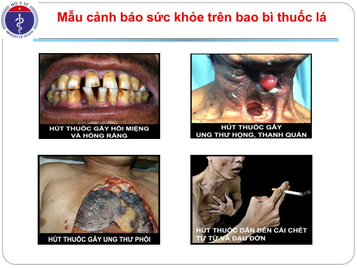 Mẫu cảnh báo sức khỏe trên bao bì thuốc lá
