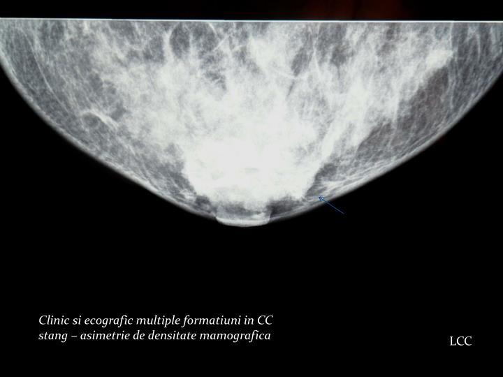 Clinic si ecografic multiple formatiuni in CC stang – asimetrie de densitate mamografica