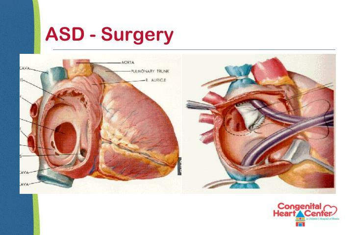 ASD - Surgery