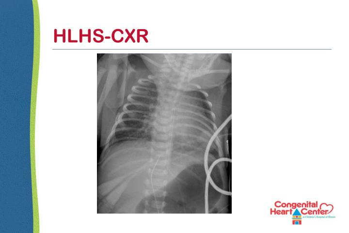 HLHS-CXR