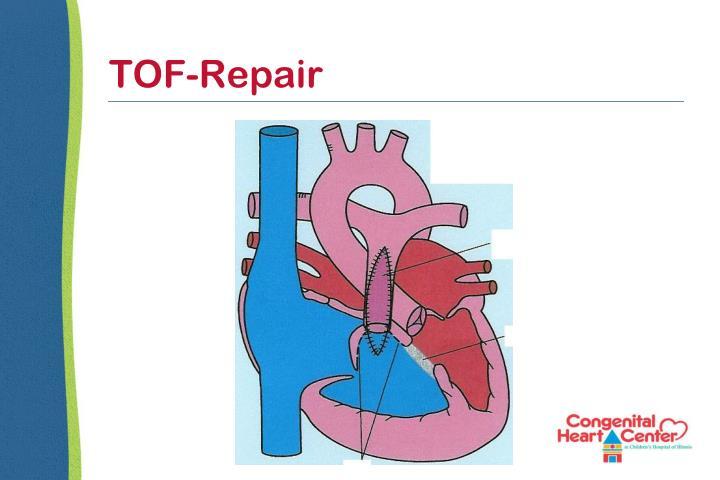 TOF-Repair