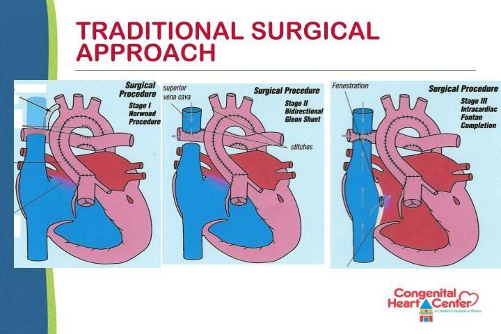 TRADITIONAL SURGICAL APPROACH