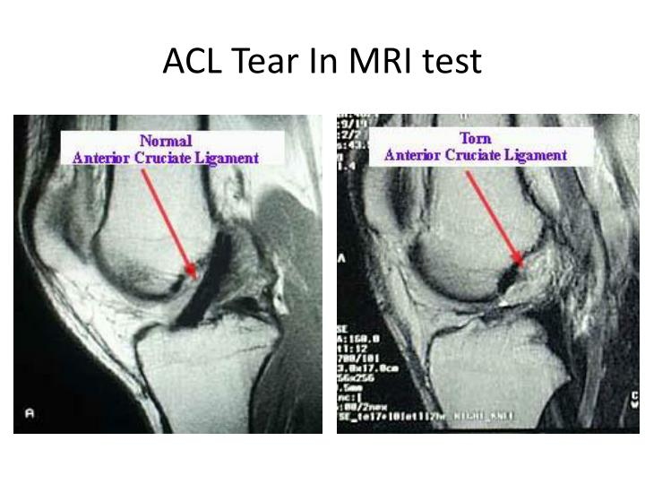 ACL Tear In MRI test