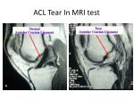 acl tear in mri test