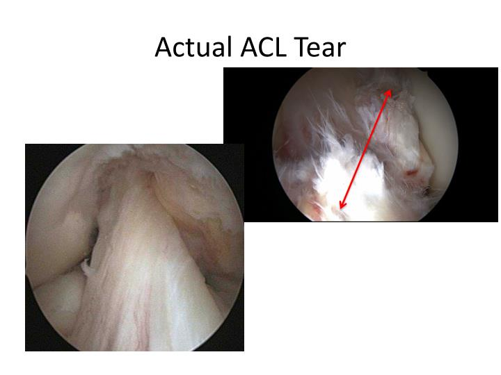 Actual ACL Tear