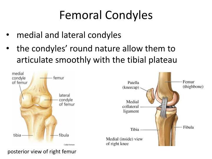 Femoral Condyles