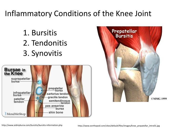 Inflammatory Conditions of the Knee Joint