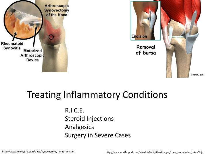 Treating Inflammatory Conditions