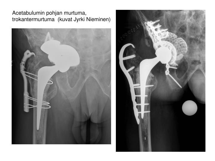 Acetabulumin pohjan murtuma, trokantermurtuma  (kuvat Jyrki Nieminen)