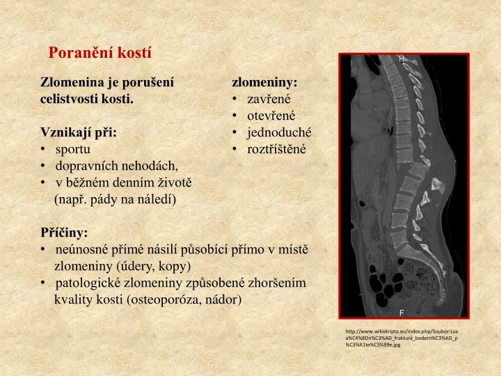 Poranění kostí