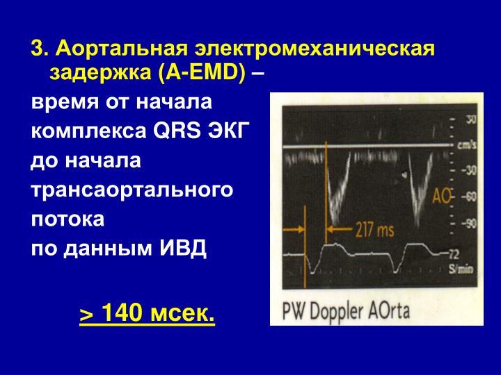 3. Аортальная электромеханическая задержка (