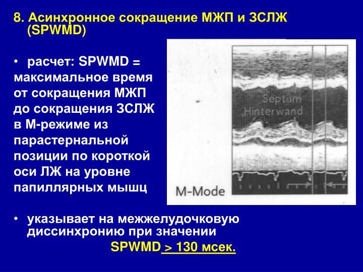 8. Асинхронное сокращение МЖП и ЗСЛЖ (