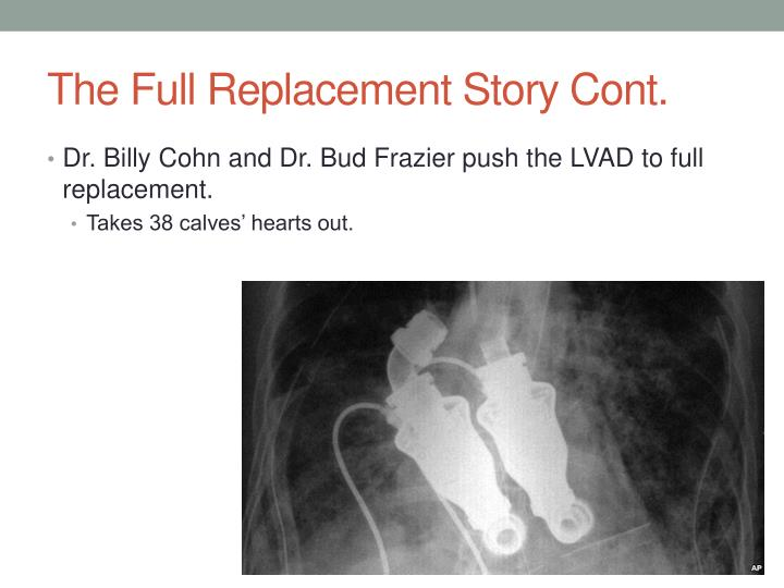 The Full Replacement Story Cont.