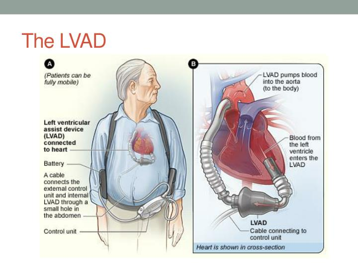 The LVAD