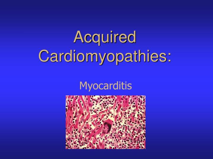 Acquired Cardiomyopathies: