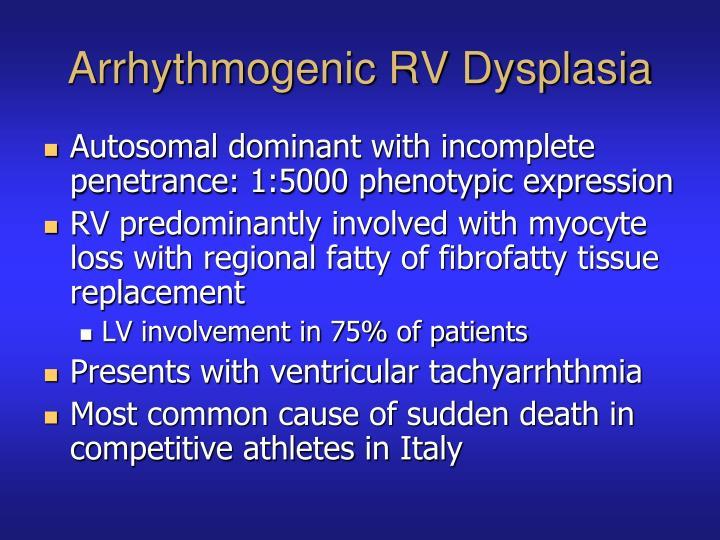Arrhythmogenic RV Dysplasia