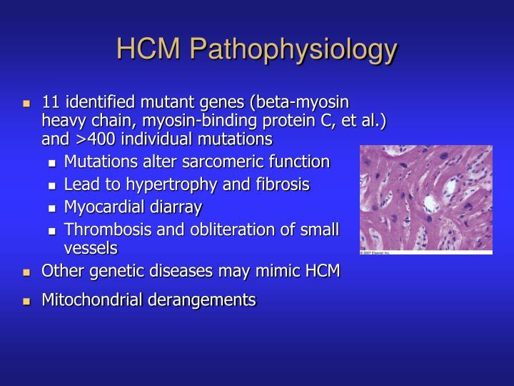 HCM Pathophysiology