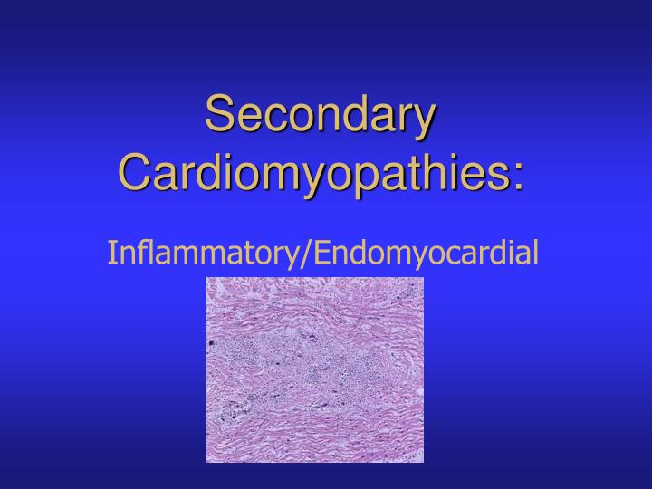 Secondary Cardiomyopathies: