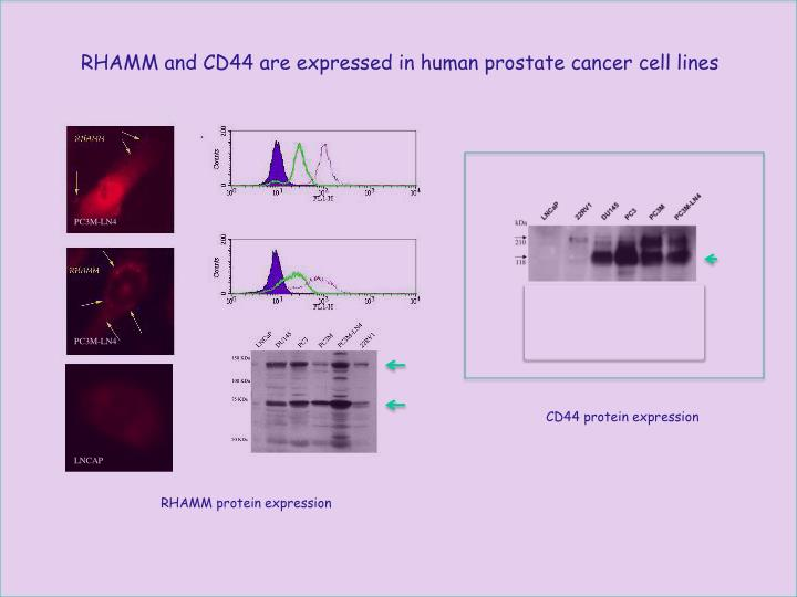 RHAMM and CD44 are expressed in human prostate cancer cell lines