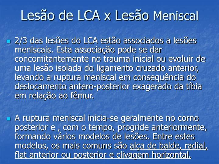 Lesão de LCA x Lesão