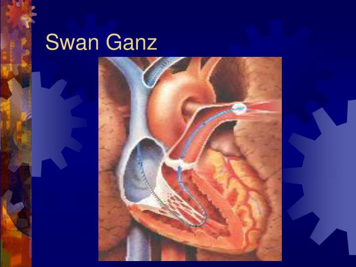 Swan Ganz