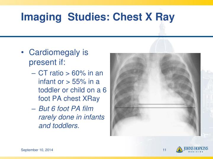 Imaging  Studies: Chest X Ray