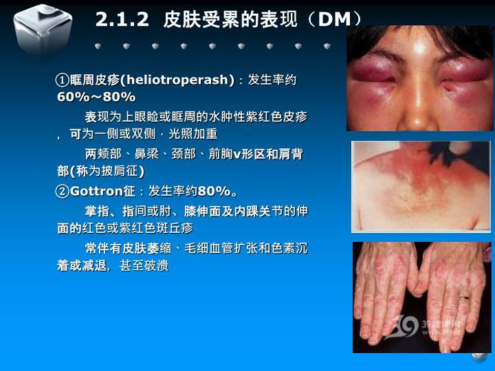 2.1.2  皮肤受累的表现