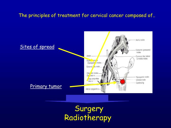 The principles of treatment for cervical cancer composed of..