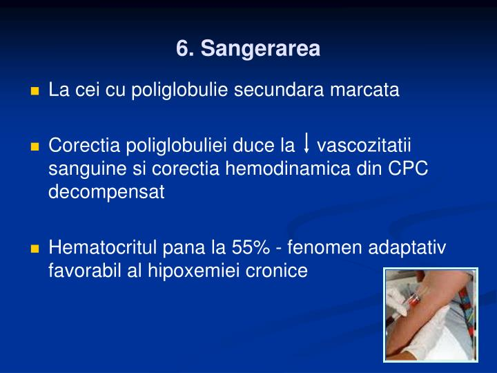 6. Sangerarea
