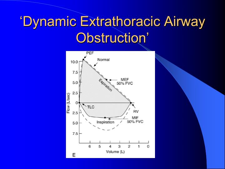 'Dynamic Extrathoracic Airway Obstruction'